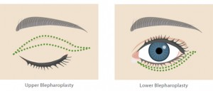 Eyelid-Surgery-Diagram-2