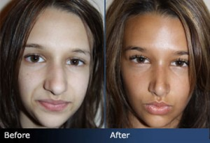 teenage rhinoplasty nose job atlanta
