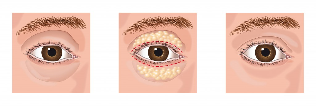 Eyelid Surgery in Atlanta