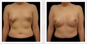 tuberous breasts dr naidu in New York