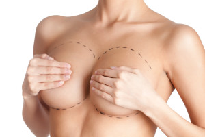 Breast Lift in nashville, tn